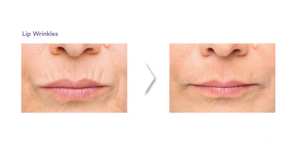Lip Enhancement Age Refined